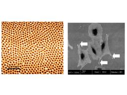 Nanostructured stainless steel surfaces and anchoring of osteoblast cells