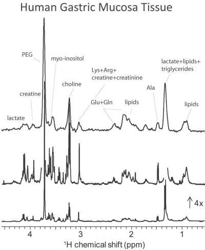 Les micro-détecteurs tournants permettent l'\'analyse RMN de micro-biopsies