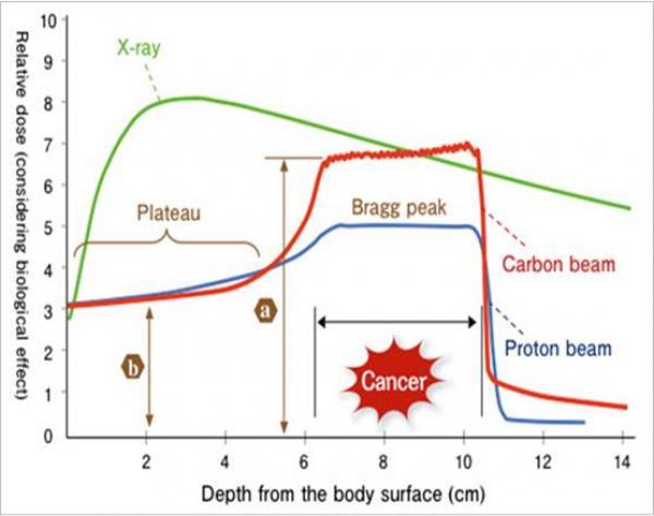 Mieux connaitre les effets d'irradiation d'une hadronthérapie, pour améliorer la sécurité des patients