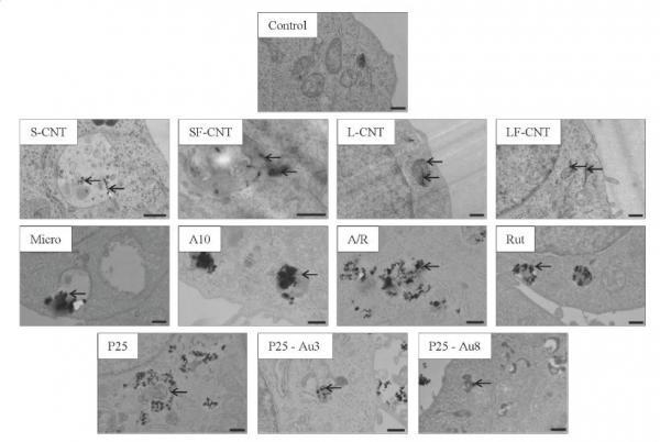 La forme des nanomatériaux : une caractéristique déterminante dans le blocage de l'autophagie, un mécanisme sous-jacent de la toxicité